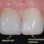 Качество зубов из металлокерамики