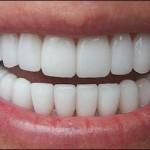 Металлокерамические зуюные протезы