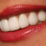 Металлокерамика и протезирование зубов