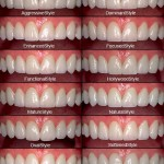 Особенности протезов из металлокерамики